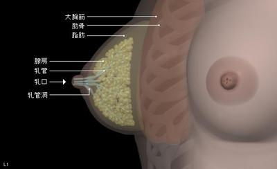 Breast01